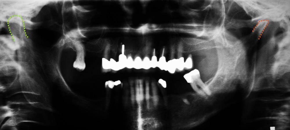 Der normale Condylus (links) und der degenerierte Condylus (rechts) bei einer Patientin mit condylärer Asymmetrie.